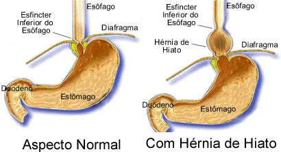 Dr s rgio batista - Alimentos prohibidos para la hernia de hiato ...